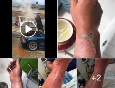 Видео: никогда не открывайте крышку радиатора во время работы мотора 1