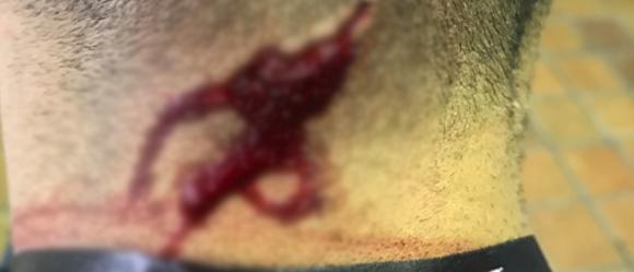Гонщик и ведущий «Top Gear» пострадал во время съемок автошоу 2